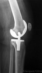Endoprotesis Knee